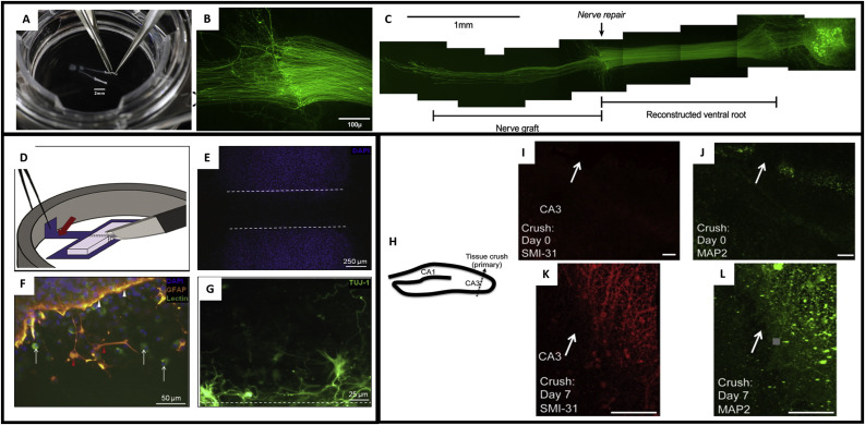Advances in ex vivo models and lab-on-a-chip devices for neural