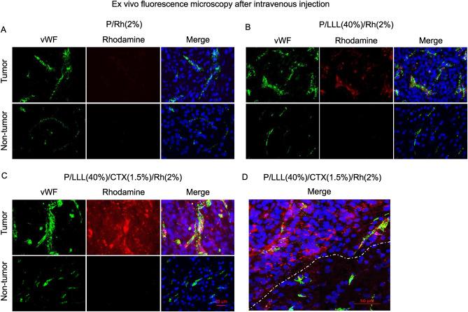 Polymalic acid chlorotoxin nanoconjugate for near-infrared