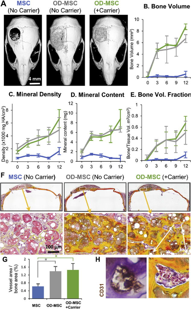 Injectable osteogenic microtissues containing mesenchymal