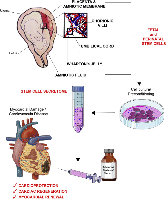 Fetal and perinatal stem cells in cardiac regeneration