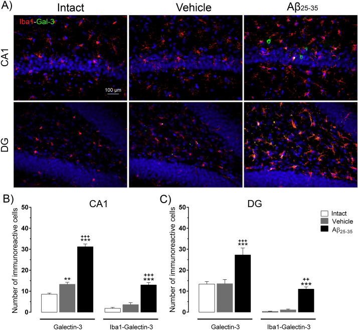Neuroinflammation induced by the peptide amyloid-β (25–35