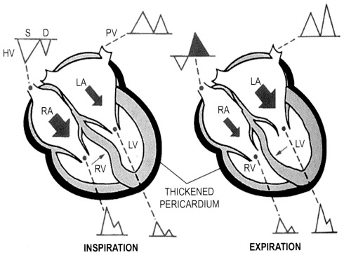Cardiac Tamponade Constrictive Pericarditis And Restrictive