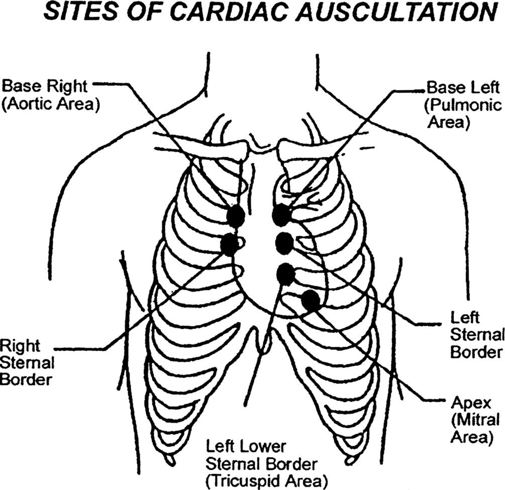 Cardiac Auscultation Rediscovering The Lost Art Sciencedirect 1990 Corrado Fuse Box Diagram Download Full Size Image