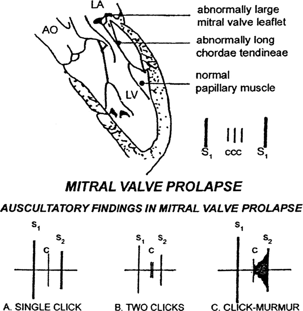 Cardiac Auscultation Rediscovering The Lost Art Sciencedirect