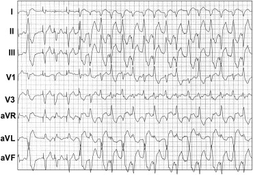 polymorphic ventricular tachycardia part ii the channelopathies