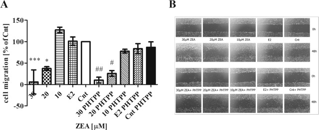Estrogen receptor β plays a protective role in zearalenone-induced
