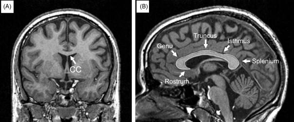 The Corpus Callosum In Dichotic Listening Studies Of Hemispheric