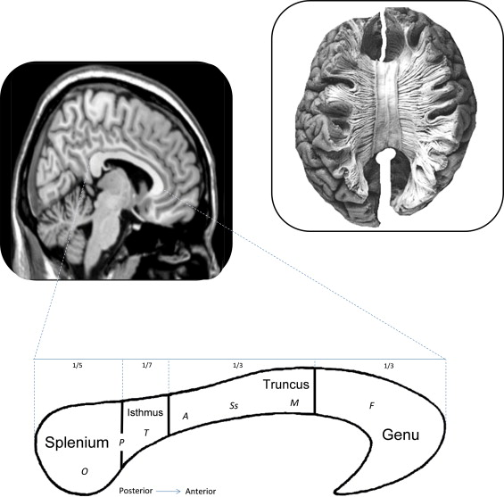 The corpus callosum: A commissural road to anger and aggression ...