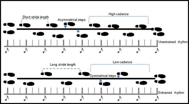 Into the groove: Can rhythm influence Parkinson's disease