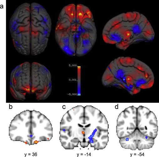 A meta-analysis of sex differences in human brain structure