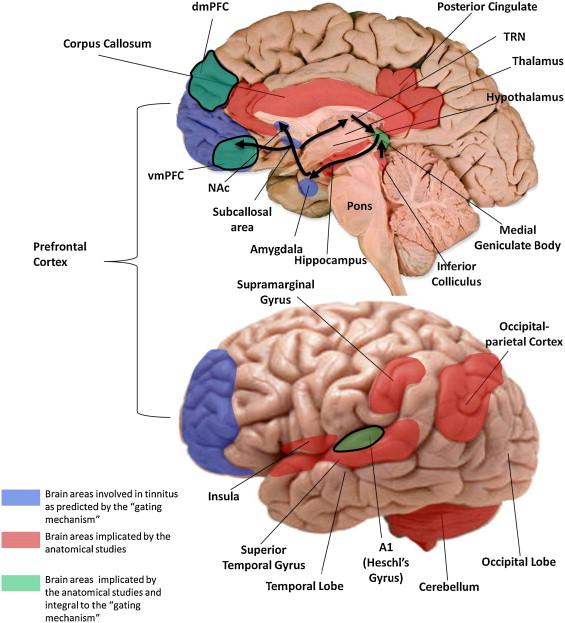 Brain gyrus anatomy image collections human body anatomy neuroanatomical abnormalities in chronic tinnitus in the human brain ccuart Image collections
