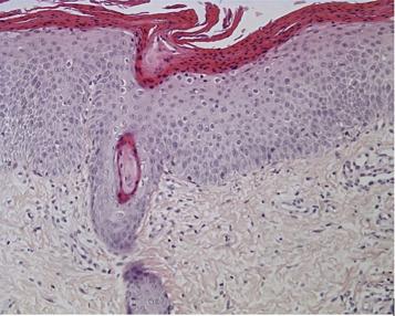Ichtyoses kératinopathiques : un diagnostic histologique presque au ...