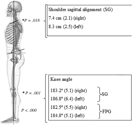 Posture Alignment Of Adolescent Idiopathic Scoliosis Photogrammetry In Scoliosis School Screening Sciencedirect How tall is 186 cm in feet and inches? posture alignment of adolescent