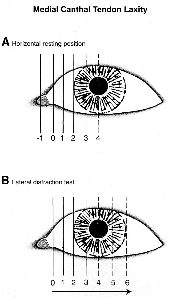 Lower eyelid medial canthal tendon laxity grading: an interobserver ...