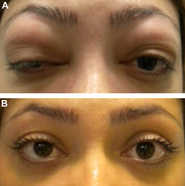Bilateral Lacrimal Gland Disease: Clinical Features of 97