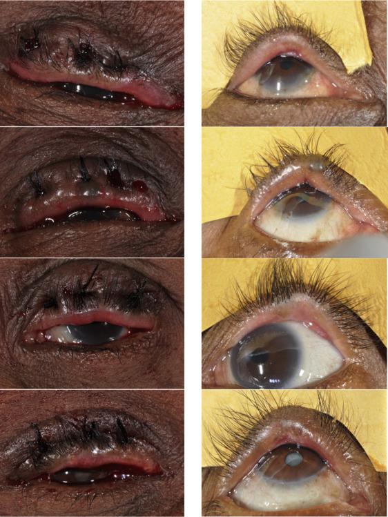 Predictors Of Trachomatous Trichiasis Surgery Outcome Sciencedirect
