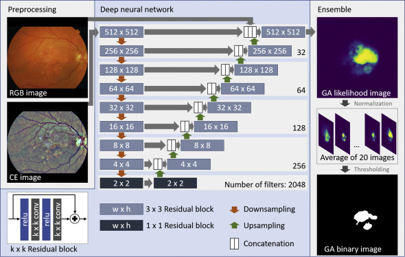A Deep Learning Model For Segmentation Of Geographic Atrophy To Study Its Long Term Natural History Sciencedirect