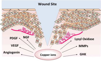 The Neglected Role Of Copper Ions In Wound Healing Sciencedirect