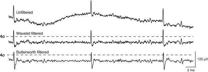 Wavelet filtering before spike detection preserves waveform shape