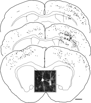 A White Matter Stroke Model In The Mouse Axonal Damage Progenitor