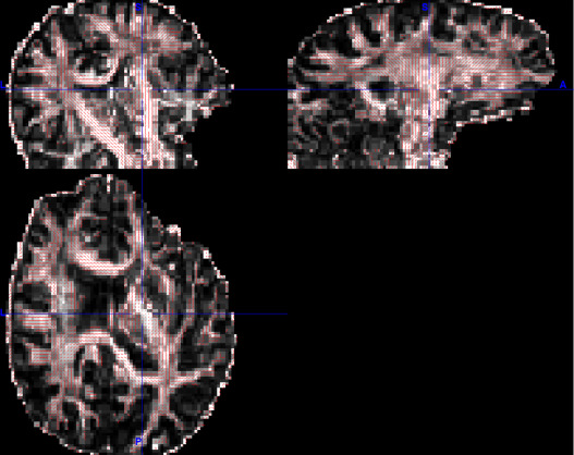 The first step for neuroimaging data analysis: DICOM to NIfTI