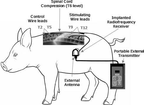 Safety Assessment Of Epidural Wire Electrodes For Cough Production
