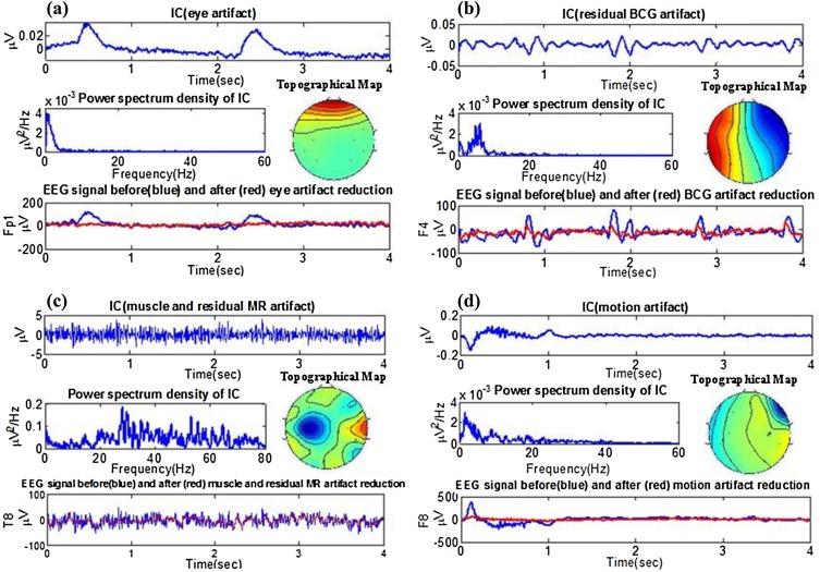 Real-time EEG artifact correction during fMRI using ICA