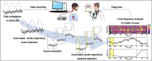 CARE-rCortex: A Matlab toolbox for the analysis of CArdio