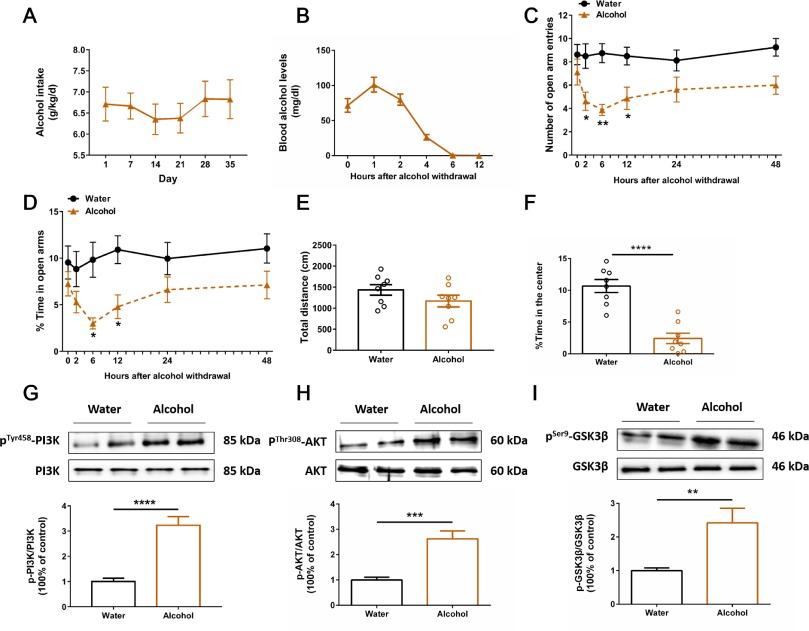 PI3K-AKT-GSK3β-CREB signaling pathway regulates anxiety-like