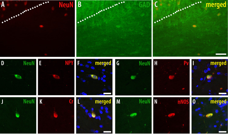 Reduced Cortical Somatostatin Gene Expression In A Rat Model