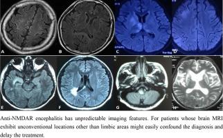 anti nmda receptor encephalitis mri