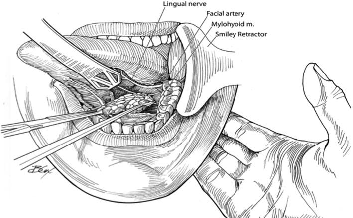 Pediatric Trans Oral Submandibular Gland Excision A Safe And