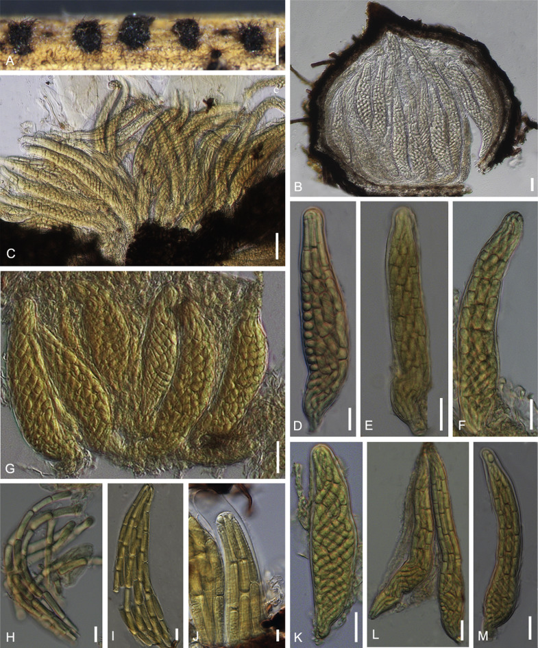 helminthosporium cynodontis)