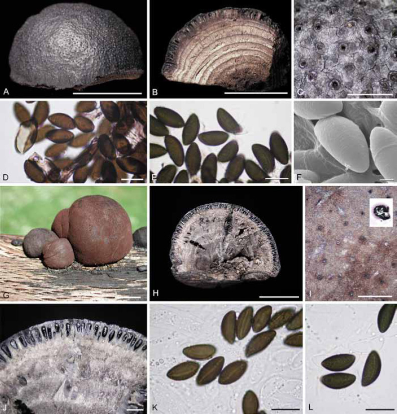 A polyphasic taxonomy of Daldinia (Xylariaceae) - ScienceDirect