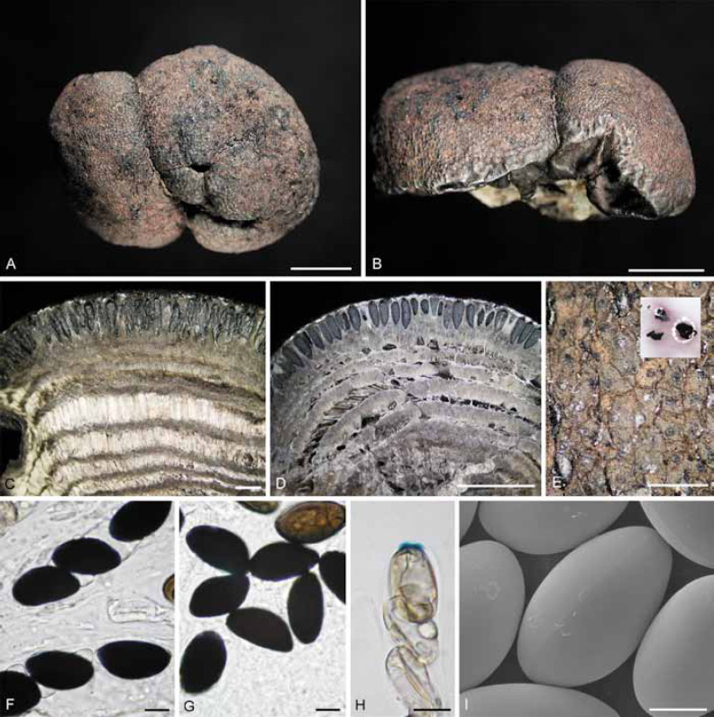 A polyphasic taxonomy of Daldinia (Xylariaceae) - ScienceDirect