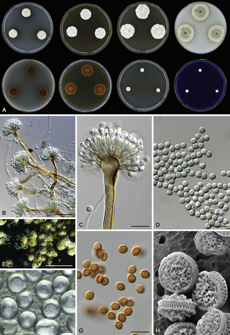 Aspergillus section Nidulantes (formerly Emericella