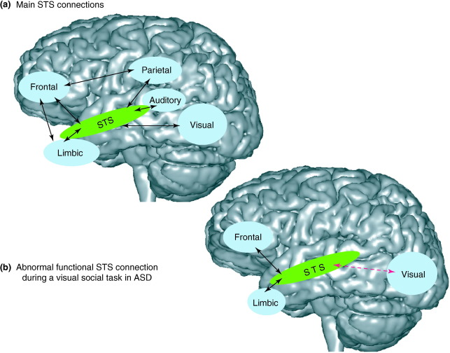 In Autism Brain Shows Unusual Thinning >> Autism The Superior Temporal Sulcus And Social Perception