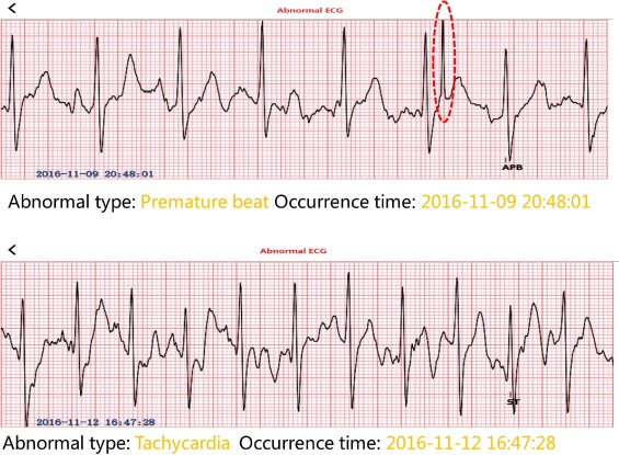 A wearable H-shirt for exercise ECG monitoring and individual