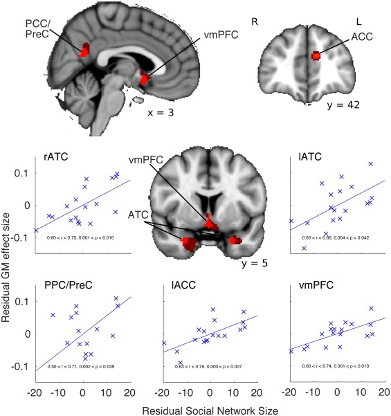 Cognition And Behavior White Matter >> The Structural And Functional Brain Networks That Support
