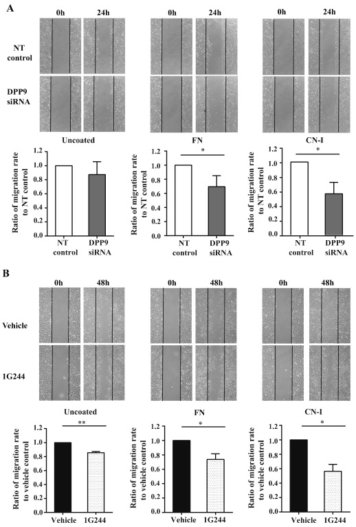 Dipeptidyl peptidase 9 subcellular localization and a role