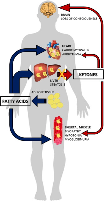 Brain Carnitine Deficiency Causes >> Carnitine Transport And Fatty Acid Oxidation Sciencedirect
