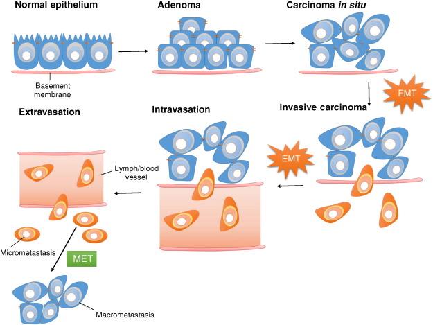 adenoma de próstata ctm