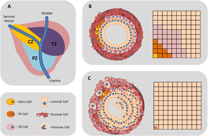 The molecular and cellular origin of human prostate cancer