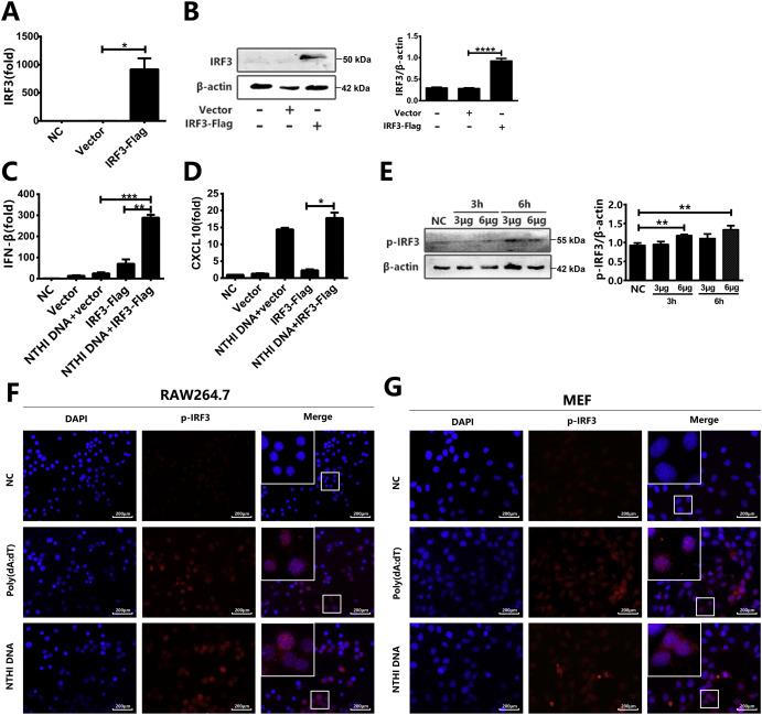 Nontypeable Haemophilus Influenzae DNA Stimulates Type I