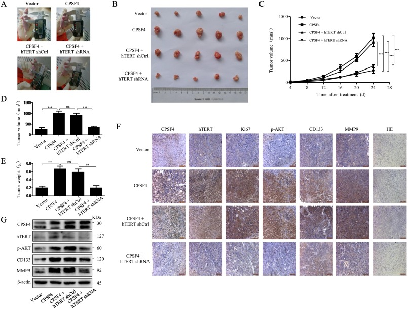 Cleavage And Polyadenylation Specific Factor 4 Promotes Colon Cancer Progression By Transcriptionally Activating Htert Sciencedirect