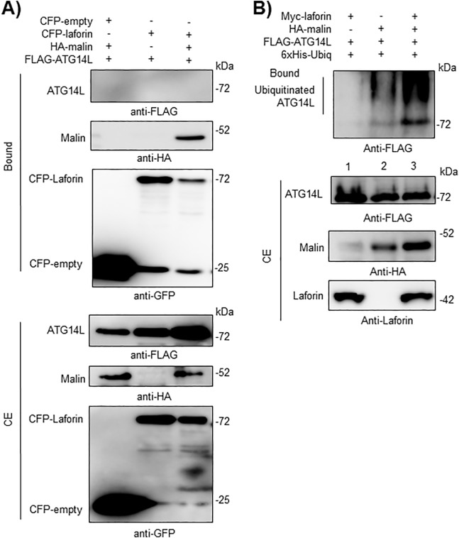 Regulation Of The Autophagic Pi3kc3 Complex By Laforin Malin E3