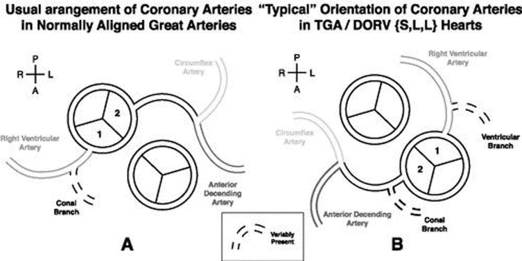 Coronary anatomy in congenitally corrected transposition of the ...