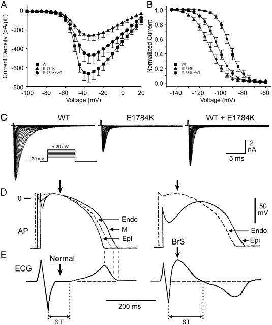 Abcc9 Is A Novel Brugada And Early Repolarization Syndrome
