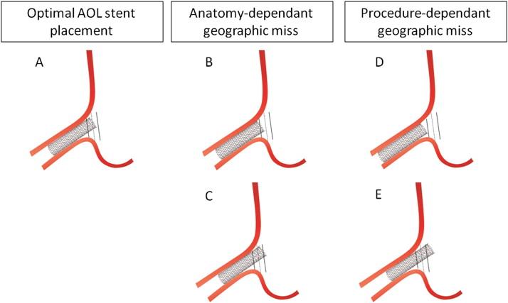 Percutaneous Treatment Of Aorto Ostial Coronary Lesions Current