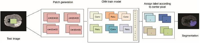 Big data analysis for brain tumor detection: Deep convolutional